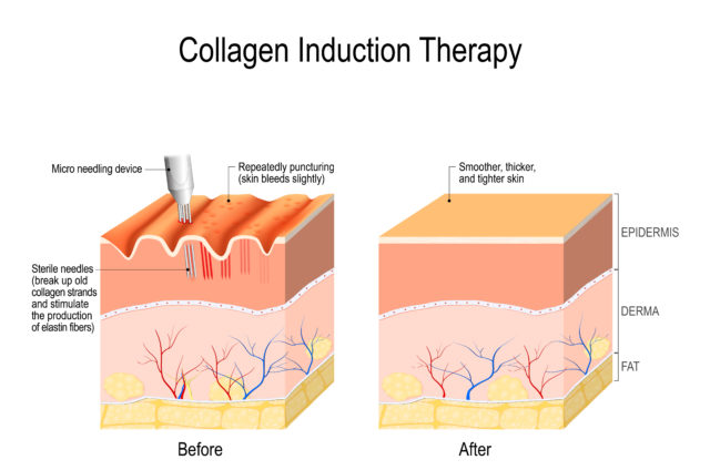 microneedling-collagen