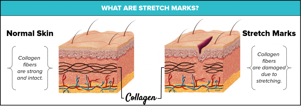 what-are-stretch-marks-infographic